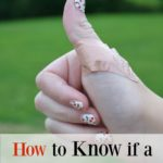 How to Know if a Cut Needs Stitches